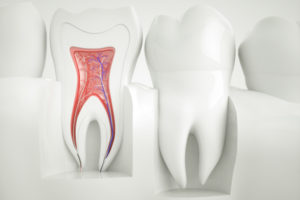 Wurzelbehandlung Zahnarzt Hannover