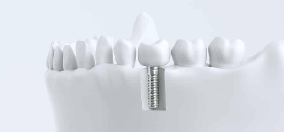Zahnimplantate Hannover