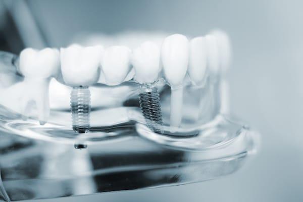 Zahnimplantate Zahnarzt Hannover Spezialisten Zahnimplantation